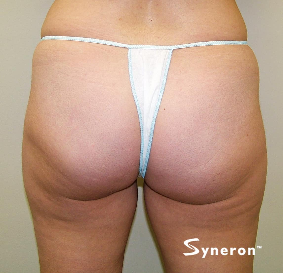 velashape 3 cellulite reduction vancouver elegance sculpting