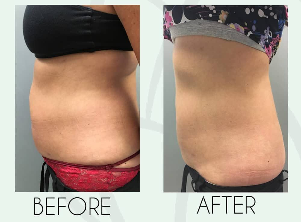 elegance sulpting ultrashape body contouring parksville b.c before and after ultrashape