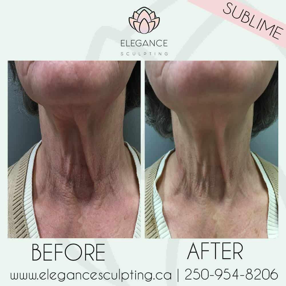 sublime skin tightening elegance sculpting parksville b.c