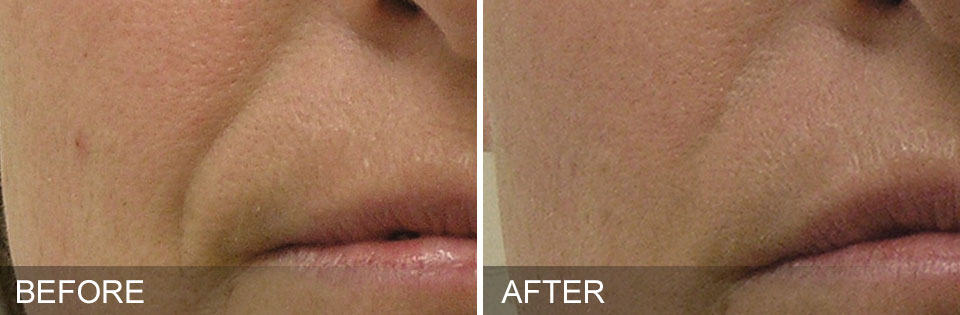 hydrafacial before and after Nasolabial Folds