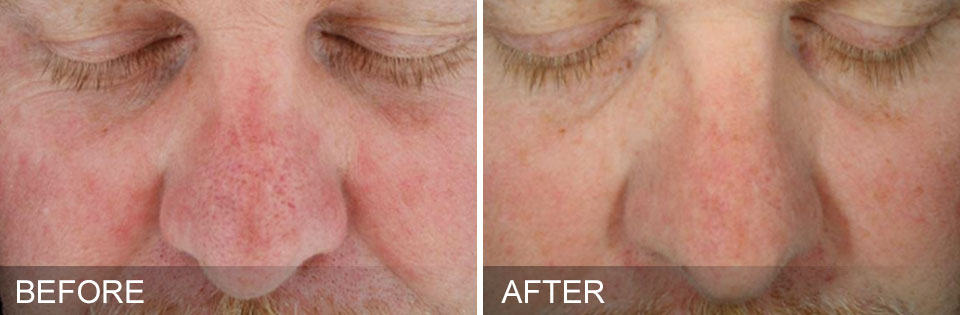 hydrafacial before and after sun damage