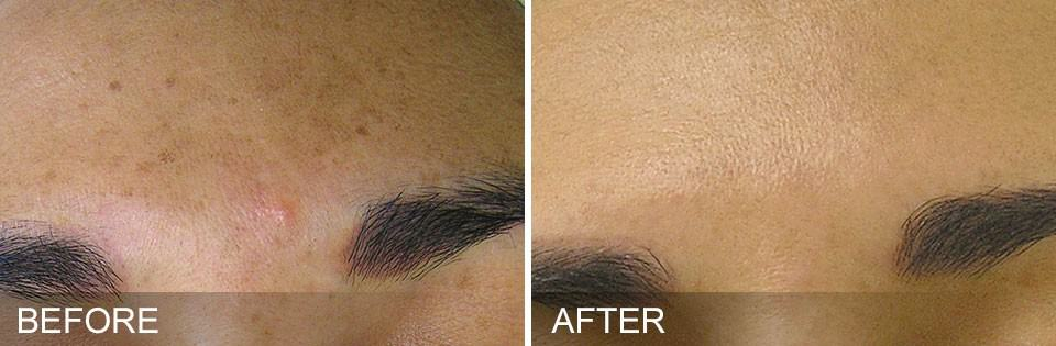 hydrafacial before and after Brown Spots