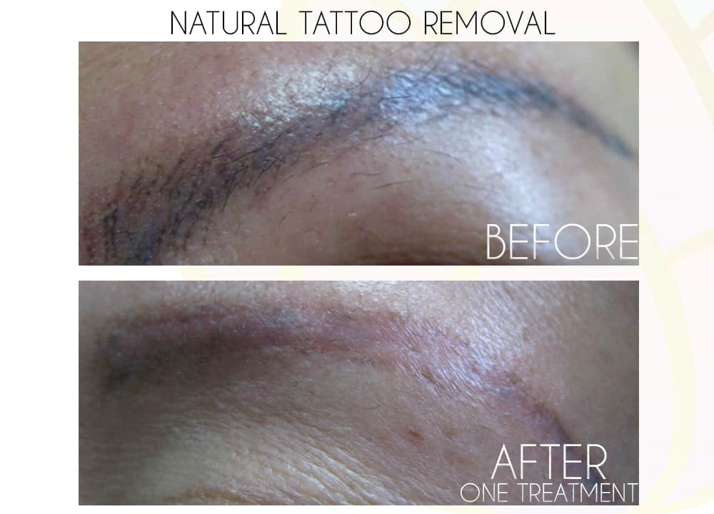 Natural Tattoo Removal | A+ Ocean | Elegance Sculpting in Parksville B.C