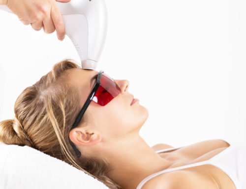 Parksville's Laser Skin Treatments